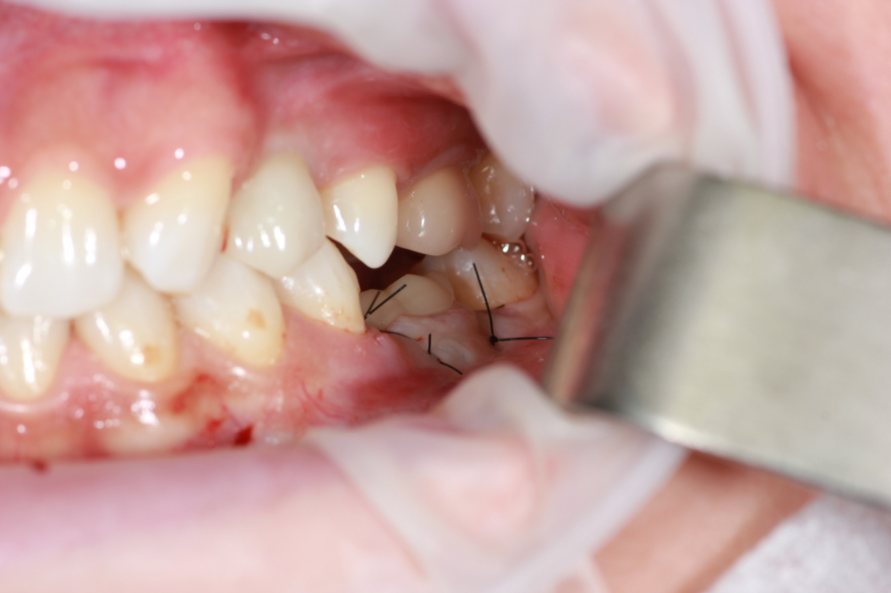 temporary crown in occlusion