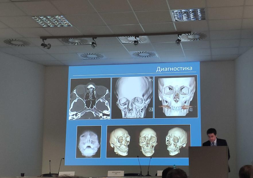 доклад о 3D-визуализации при орбитальной патологии