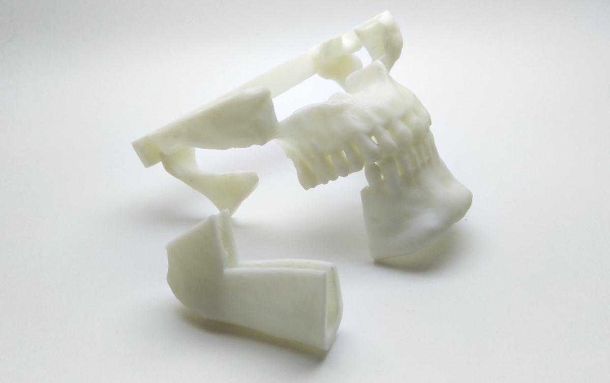3д-модель с трансплантатом