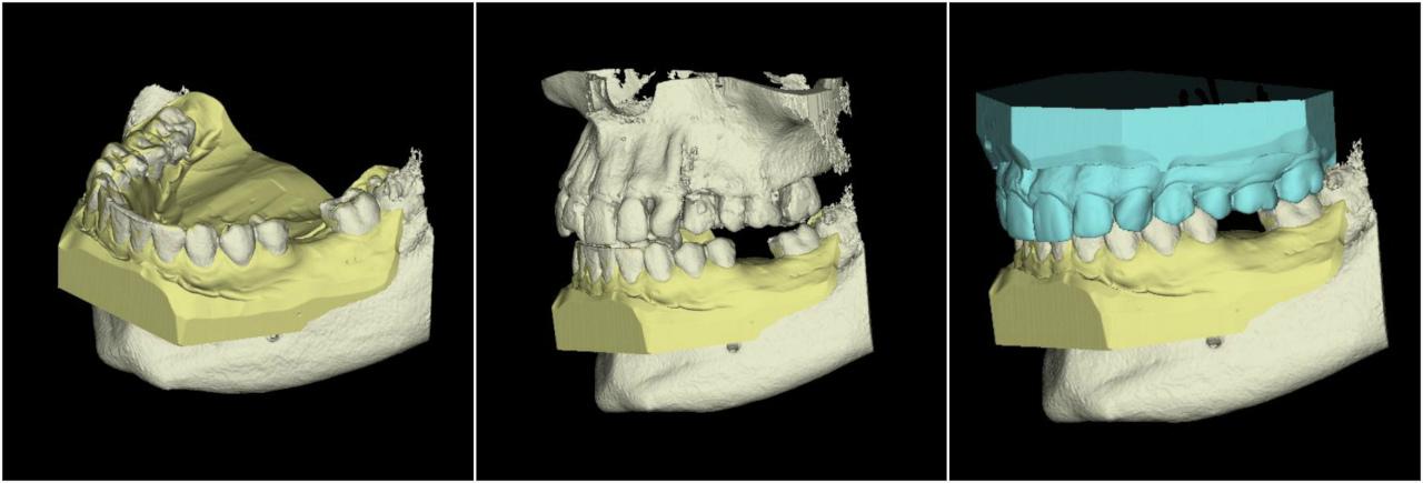 dental_models
