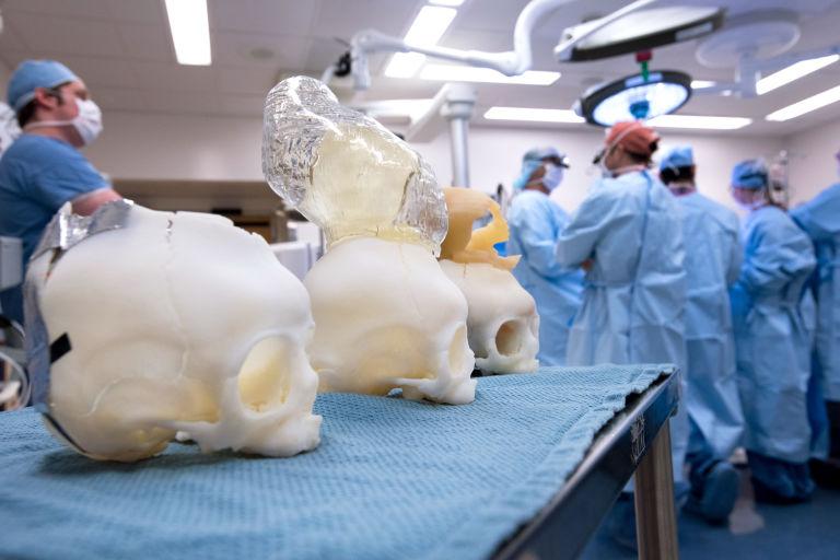 3d-модели для хирургического вмешательства
